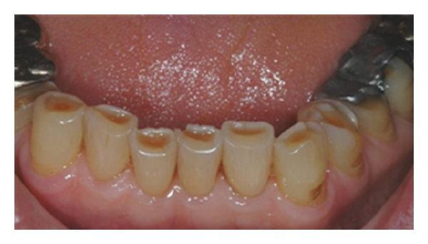 (b) Worn lower incisors mainly due to erosion, but with some attrition
