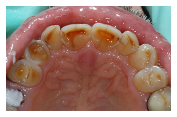 (c) Class 2 div 2 incisor arrangement with crowding and erosion but with some attrition