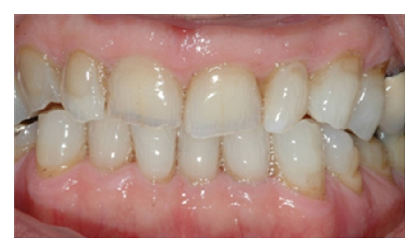 (d) Appearance following 6 weeks of night guard vital bleaching with 10% carbamide peroxide