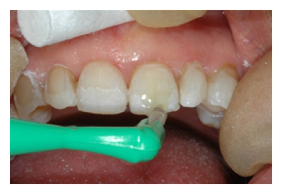 (g) Palatal surfaces are built up first, and labial bonding is then added