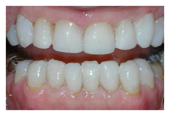 (k) Worn teeth covered by protective, expendable direct composite resin. No damage was inflicted on the already eroded teeth