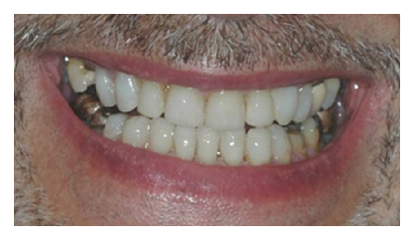 (l) Result of treatment of moderate-to-severe wear treated by night guard vital bleaching followed by direct resin composite bonding. No destruction of any of the residual sound tooth tissue was involved