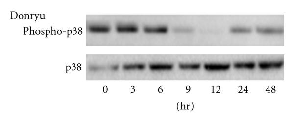 424356.fig.004a