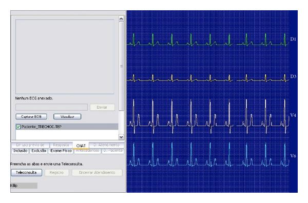 (a) ECG acquisition and viewer window.