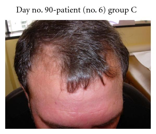 Pilot Study Of 15 Patients Receiving A New Treatment Regimen For Androgenic Alopecia The Effects Of Atopy On Aga