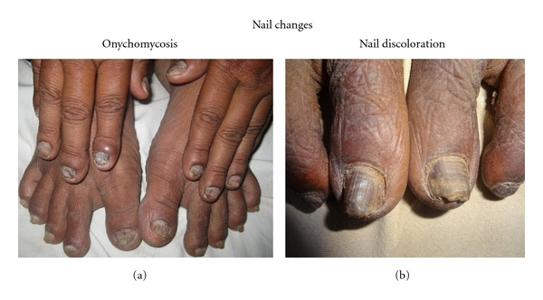 Cutaneous Manifestations In Patients With Chronic Kidney Disease On Maintenance Hemodialysis