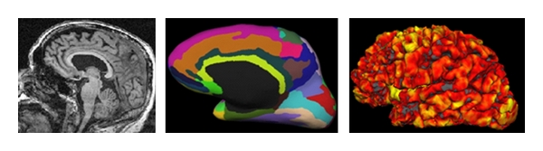 (a)  Original T1→ cortical parcellation→ thickness map
