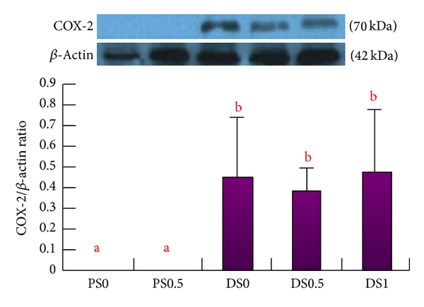 Figure 3 Soy Saponins Meditate The Progression Of Colon Cancer In Rats By Inhibiting The Activity Of B Glucuronidase And The Number Of Aberrant Crypt Foci But Not Cyclooxygenase 2 Activity
