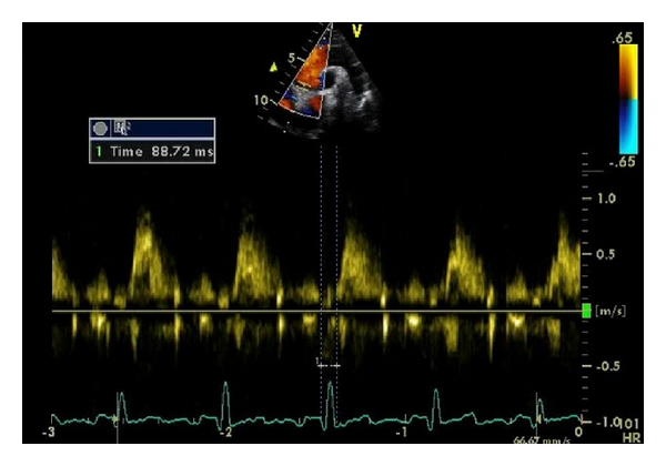 (a) Time from QRS to onset of flow in ascending aorta