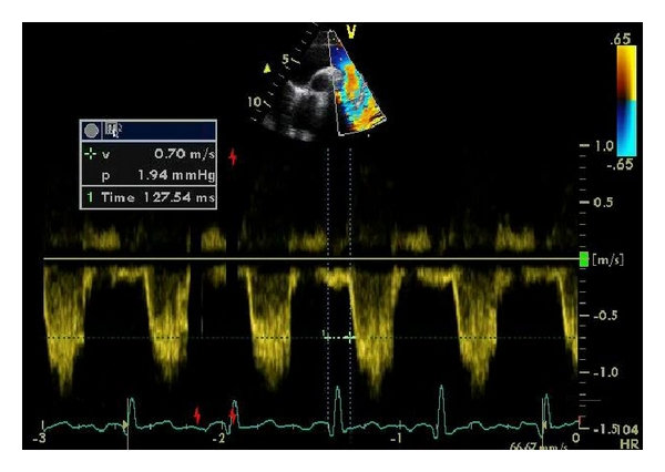 (c) Time from QRS to onset of flow in descending aorta