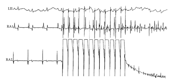(b) Induced AF (burst pacing, ACh 100 μM)