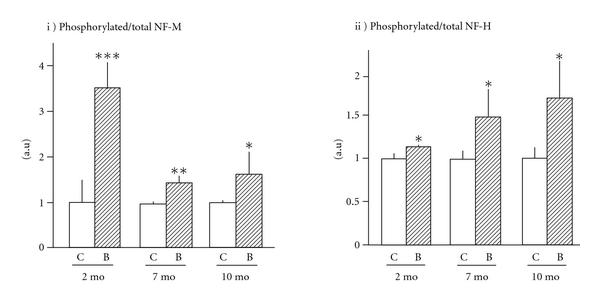 (e) Ratio of phosphorylated to total NFs