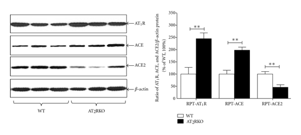 (b) Basal protein expression in RPT by western blot.