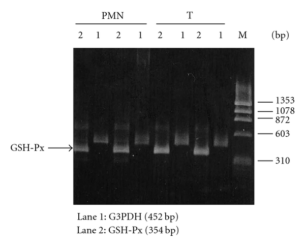 (c) GSH-PX in normal T and PMN