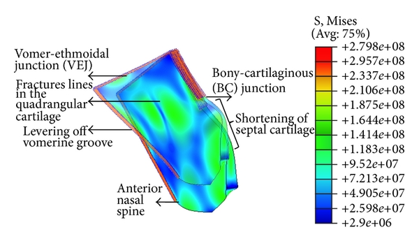 Preliminary Deformational Studies On A Finite Element Model Of The