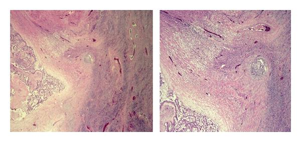 (b) Photomicrographs of histology showing vessels in (L) low power, (R) high power