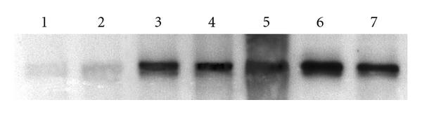 (a) Lanes 1-2 represent control corneas; lanes 3-4 and 6-7 show a high level of expression of SLPI in the S. aureus keratitis group. Lane 5 is a molecular weight marker at 12 kDa