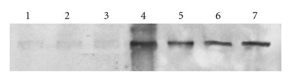 (b) Lanes 1–3 represent control corneas, and lanes 5–7 are the epithelial defect group. Lane 4 is the molecular weight marker. Bands are representative of duplicate experiments with similar results