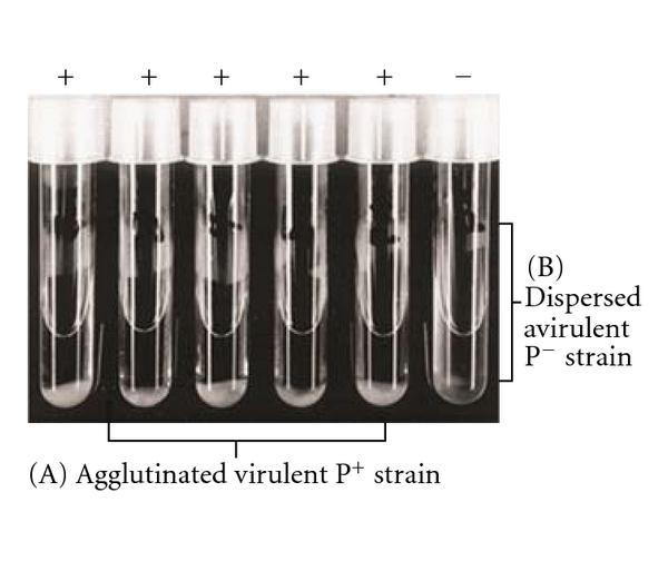(d) Autoagglutination test