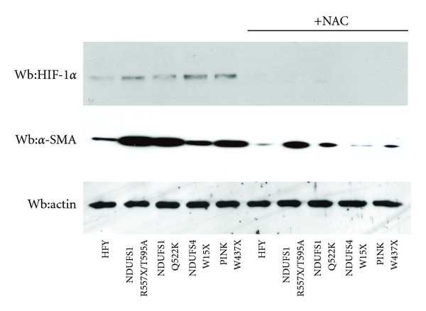 (b) Lysates of fibroblasts cultured in low glucose serum-free medium for 24 hours in hypoxic condition (1% O2) with or without 20 mM NAC were subjected to HIF-1α and α-SMA immunoblot analysis