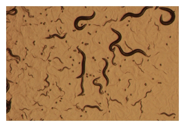 (a) View of a C. elegans culture through the microscope. Worms of different stages can be discerned. Biggest worms are adults. Small dots are eggs. Worms of intermediate size are in different larval stages
