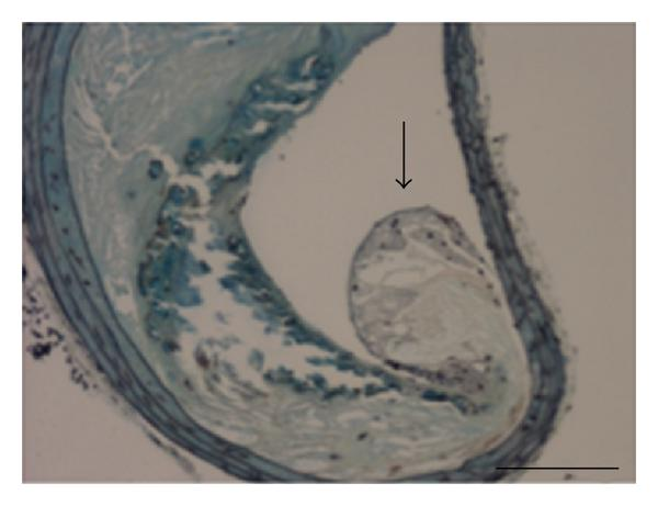 (d) Lateral xanthoma