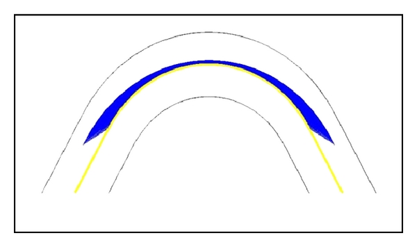 (b) Normal trajectory