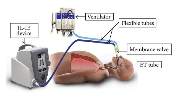 (a) Simplified mechanical ventilation system