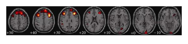 (e) Angle source 5: frontal lobe with right cuneus