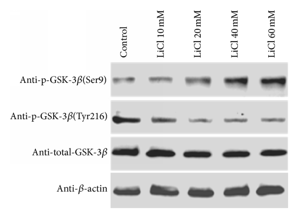 Lithium Chloride Suppresses Colorectal Cancer Cell Survival And Proliferation Through Ros Gsk 3b Nf Kb Signaling Pathway