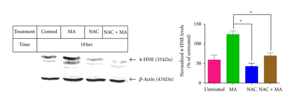 (b) Effect of NAC on 4HNE levels