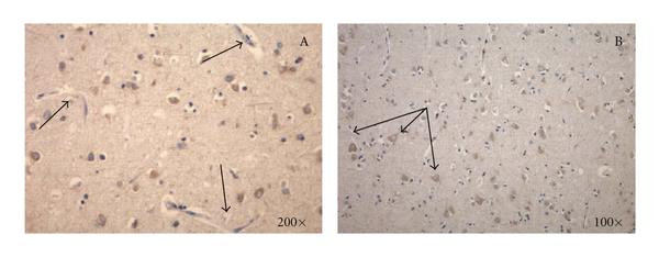 (c) A panel showing the marked reduction in intensity of immunopositivity for RAP in Alzheimer's disease cortex, note weak staining of cortical neurons and absent staining of microvessels (see arrows).