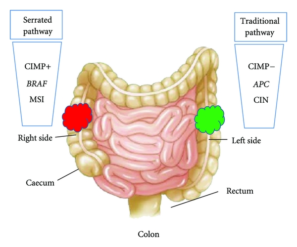 Genetic And Epigenetic Events Generate Multiple Pathways In Colorectal Cancer Progression