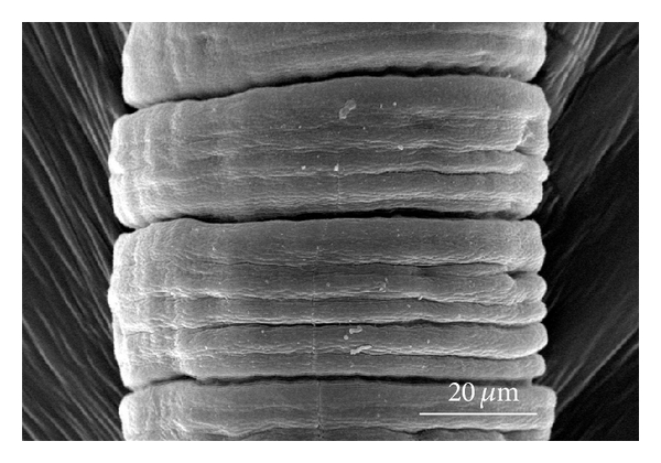 (c) Section enlargement of a control nematode. Ring groove is evident