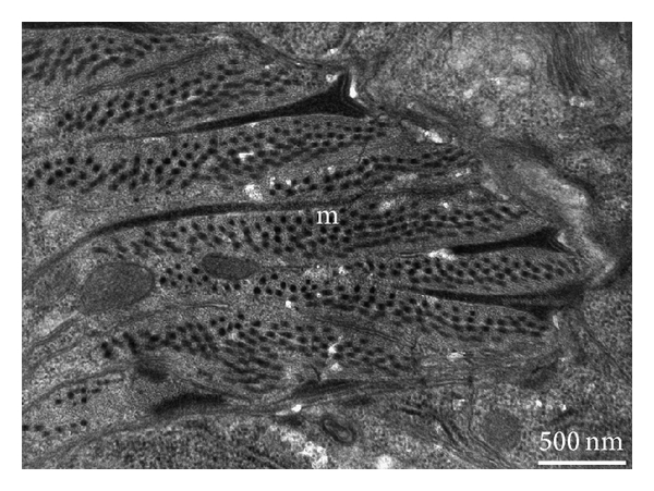 (a) Section magnification of a control nematode, showing the detailed fine structure of a muscle cell (m)