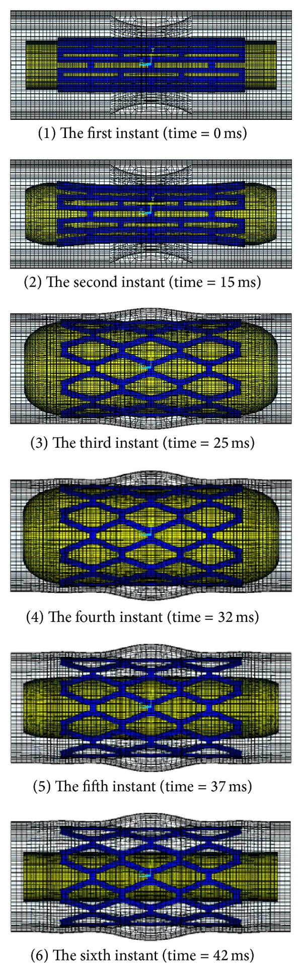 (a)  Pattern of the stent expansion for LPV and LPC models