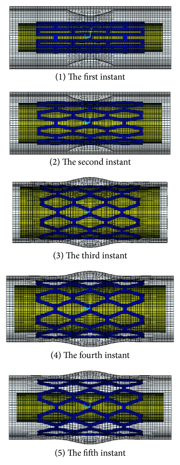 (b)  Pattern of the stent expansion for LRD model