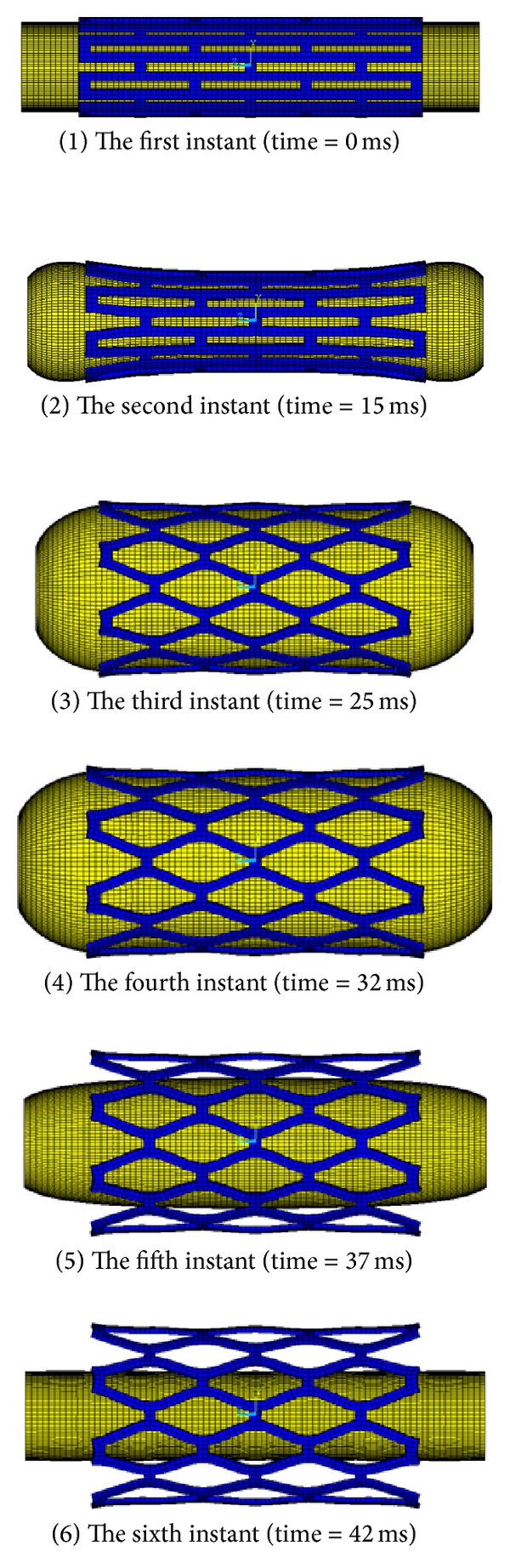 (c)  Pattern of the stent expansion for SMPV model